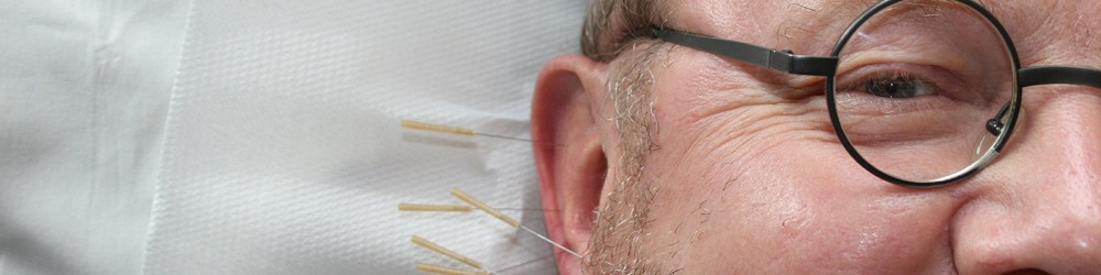 Tinnitus and acupuncture